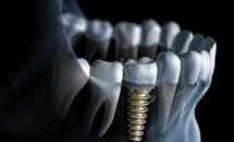 Zahnimplantat 3